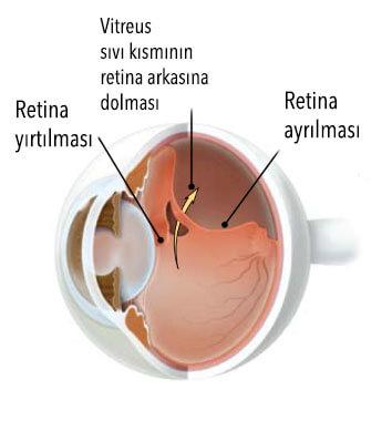 cocuklarda retina dekolmanı